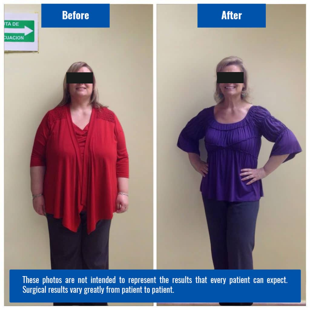 Gastric Sleeve Results